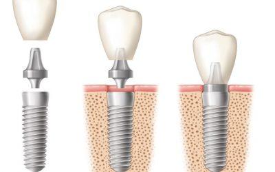 Despre implanturile orale