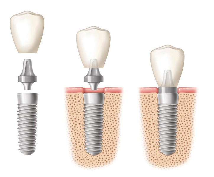 implant dentar clinica dr. vereanu