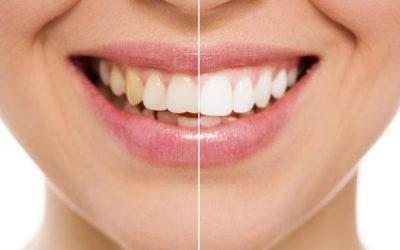 Naturaleţea dinţilor în estetica dentara