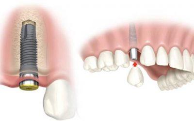 Totul despre implanturile dentare (II)