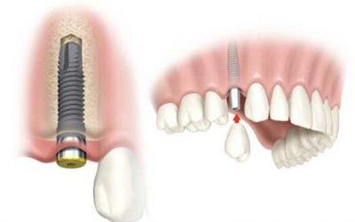 Cum definim reușita unui tratament stomatologic prin implanturi dentare?