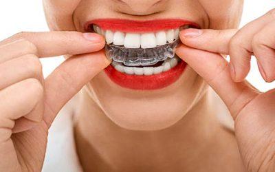 Tratamentul ortodontic este unul complex si de lunga durata. Dintii drepti sunt o necesitate.