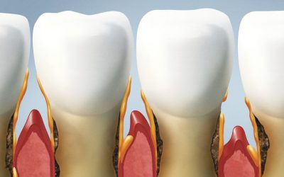 Parodontoza: atenţie la semnele minore