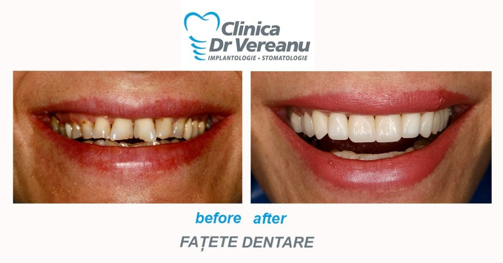 Fatele dentare - estetica dentara before and after