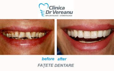 Fatete dentare – afla cui sunt recomandate
