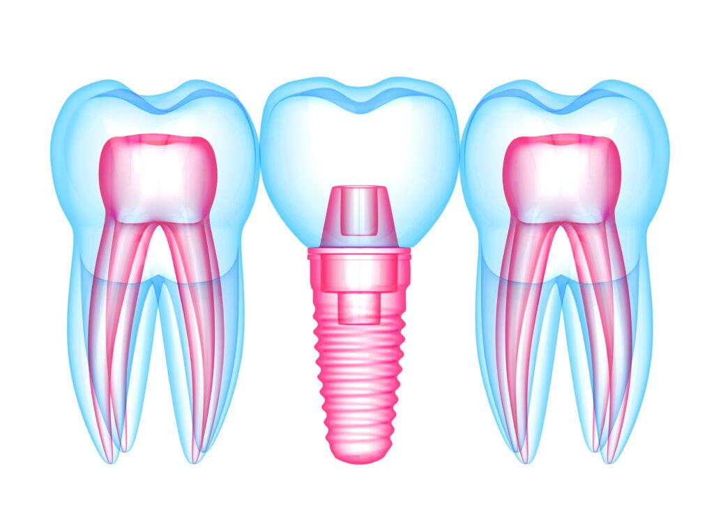 Clinica dr. Vereanu Etapele inserarii unui implant dentar pt site