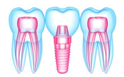 Etapele inserarii unui implant dentar